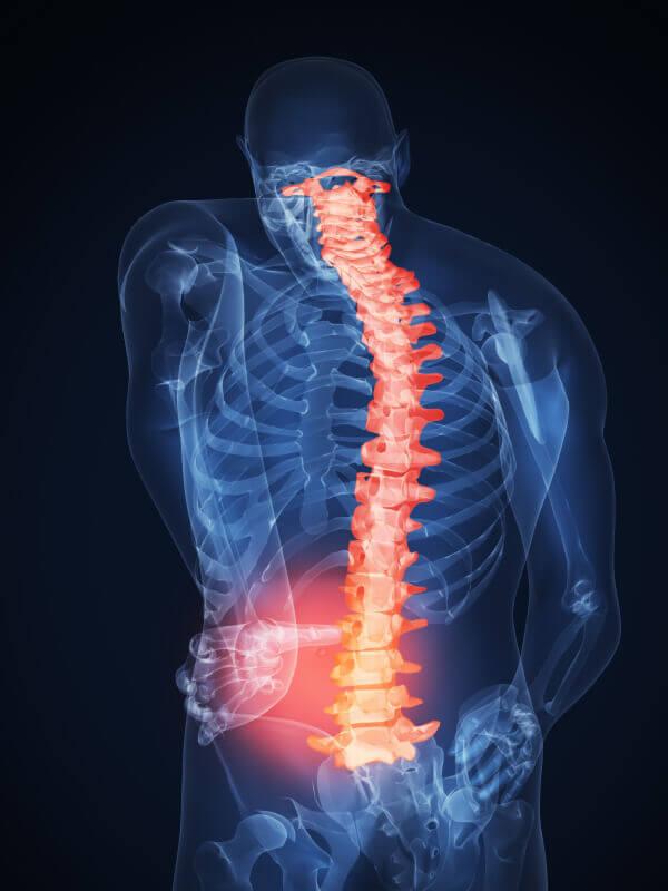 Симптомы межпозвоночной грыжи поясничного отдела у мужчин, признаки грыжи пояснично-крестцового отдела