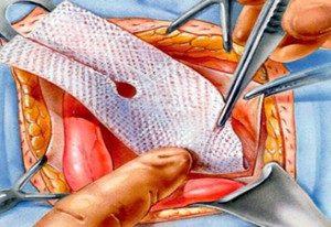 Послеоперационная грыжа брюшной полости лечение без операции